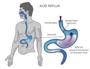Acid Reflux Diagram