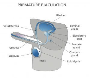 Premature Ejaculation Diagram