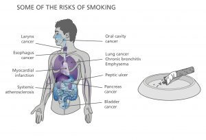 Some of the Risks of Smoking