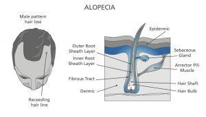 Alopecia Diagram