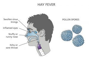 Hay fever Diagram