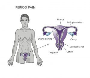 Period Pain Diagram