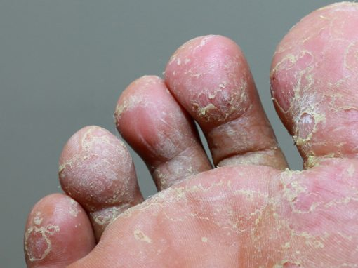 What is the best treatment for fungal infection