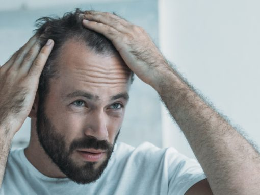 What is hair loss and how to stop it